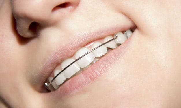 THE RISE OF CROOKED TEETH